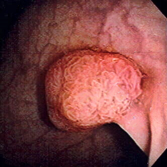 Polyp of sigmoid colon as revealed by colonoscopy. Approximately 1 cm in diameter.